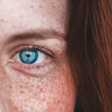 How to get rid of Skin Pigmentation?